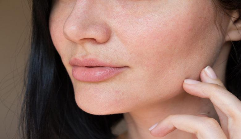 Lutter contre la sécheresse de la peau